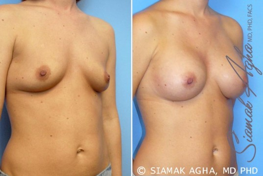 orange-county-breast-augmentation-patient-21-front-right