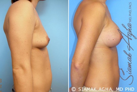 orange-county-breast-augmentation-patient-21-right