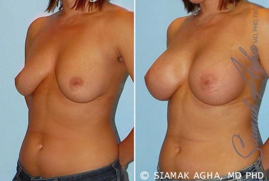 orange-county-breast-augmentation-patient-22-front-left
