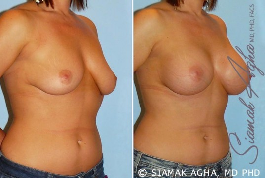 orange-county-breast-augmentation-patient-22-front-right