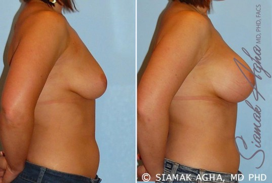 orange-county-breast-augmentation-patient-22-right