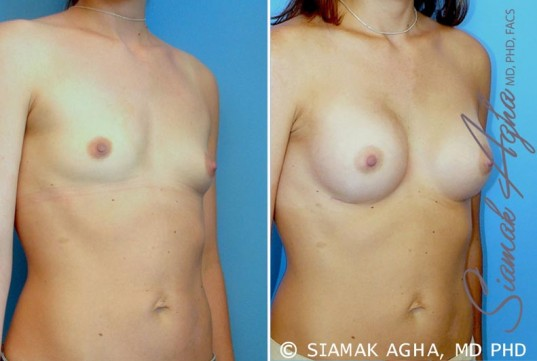 orange-county-breast-augmentation-patient-23-front-right
