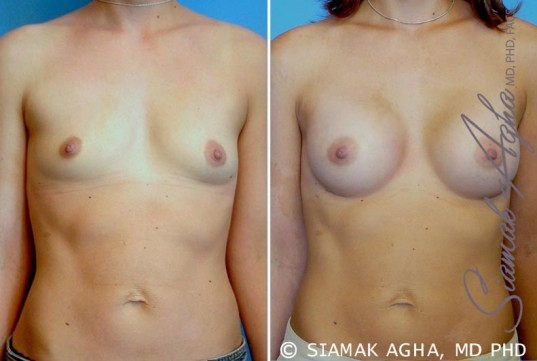 orange-county-breast-augmentation-patient-23-front