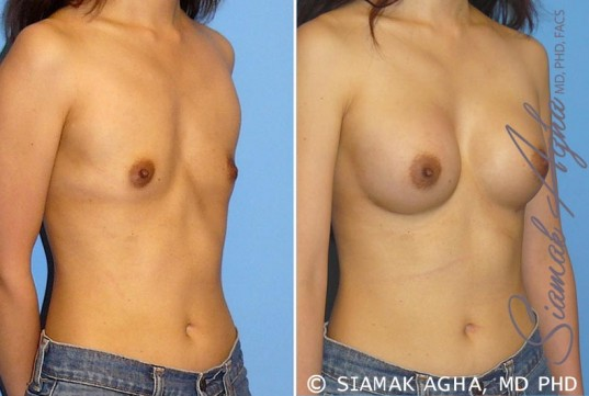 orange-county-breast-augmentation-patient-24-front-right
