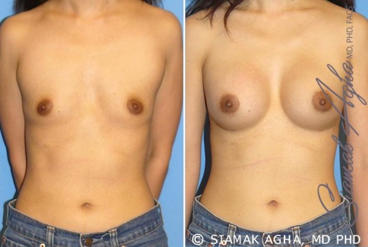 orange-county-breast-augmentation-patient-24-front