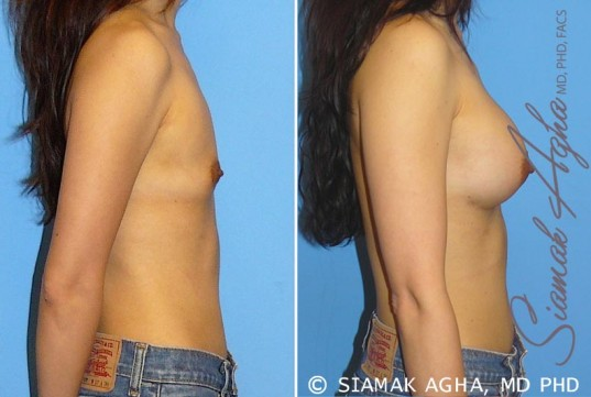 orange-county-breast-augmentation-patient-24-right