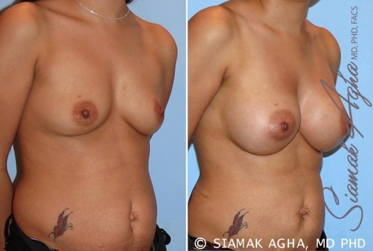orange-county-breast-augmentation-patient-26-front-right