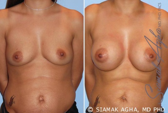 orange-county-breast-augmentation-patient-26-front