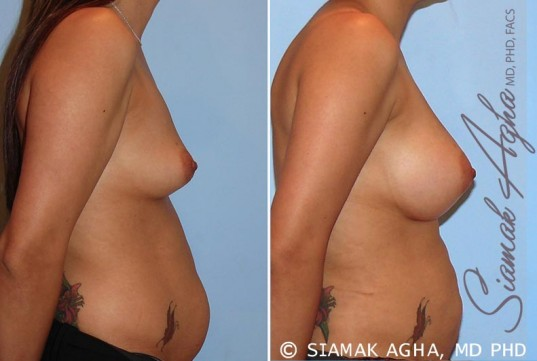 orange-county-breast-augmentation-patient-26-right