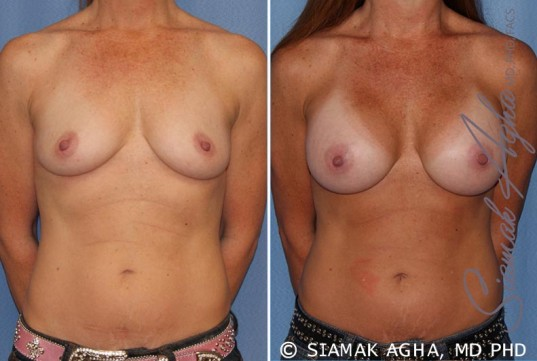 orange-county-breast-augmentation-patient-27-front