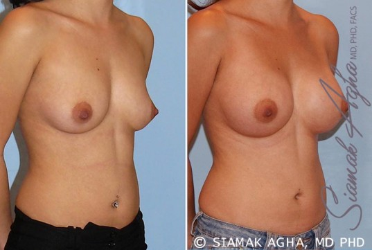 orange-county-breast-augmentation-patient-29-front-right