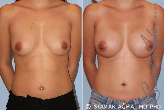 orange-county-breast-augmentation-patient-29-front