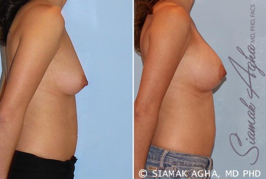 orange-county-breast-augmentation-patient-29-right