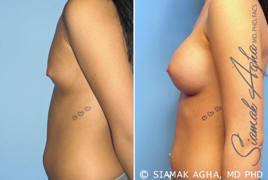 orange-county-breast-augmentation-patient-3-left