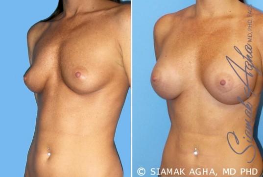 orange-county-breast-augmentation-patient-30-front-left