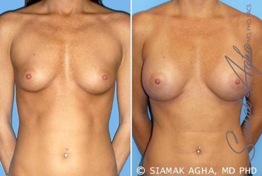 orange-county-breast-augmentation-patient-30-front