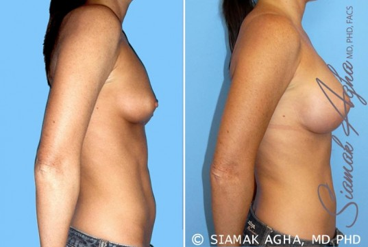 orange-county-breast-augmentation-patient-30-right