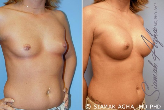 orange-county-breast-augmentation-patient-31-front-right