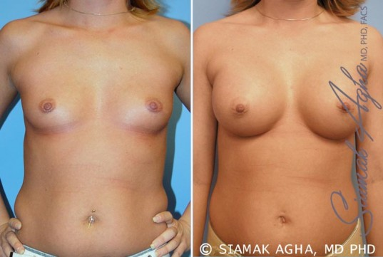 orange-county-breast-augmentation-patient-31-front