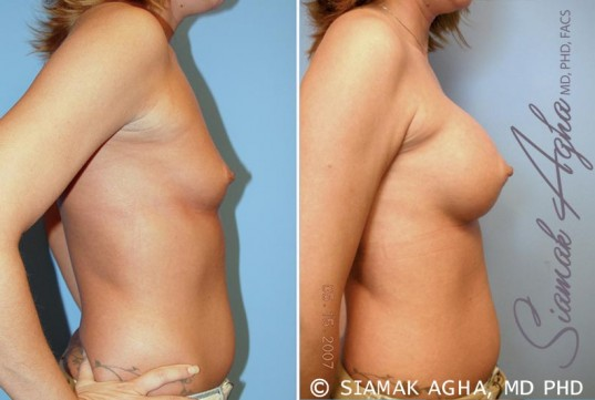 orange-county-breast-augmentation-patient-31-right