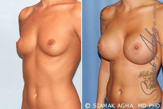 orange-county-breast-augmentation-patient-33-front-left