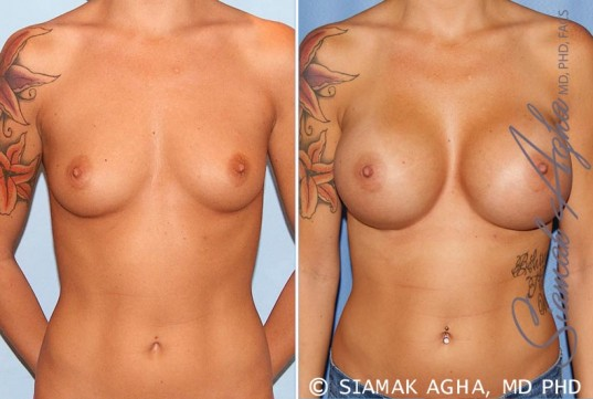 orange-county-breast-augmentation-patient-33-front