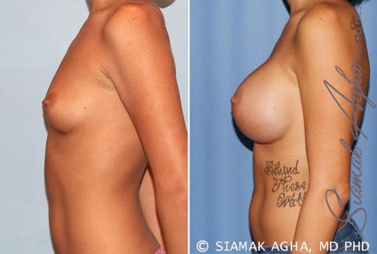 orange-county-breast-augmentation-patient-33-left