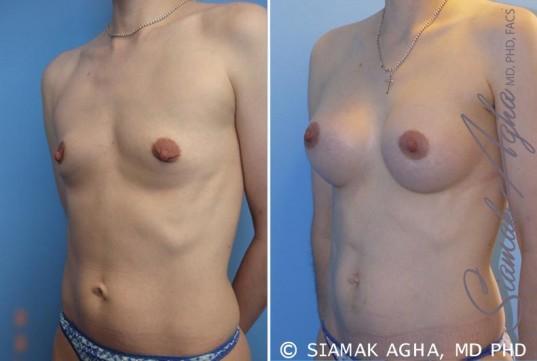 orange-county-breast-augmentation-patient-34-front-left