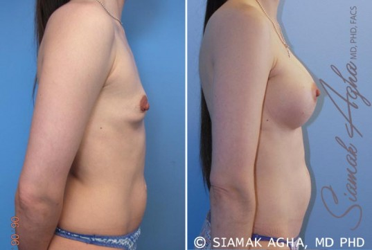 orange-county-breast-augmentation-patient-34-right