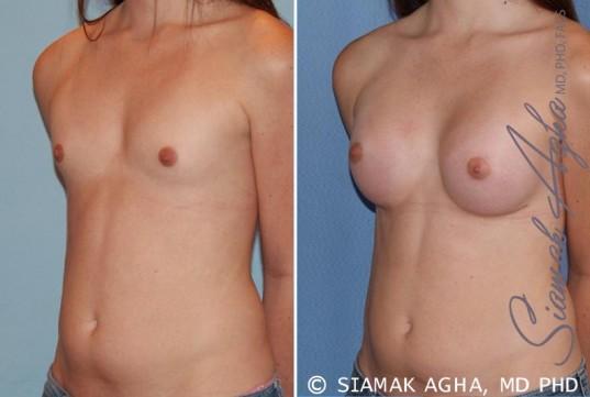 orange-county-breast-augmentation-patient-35-front-left