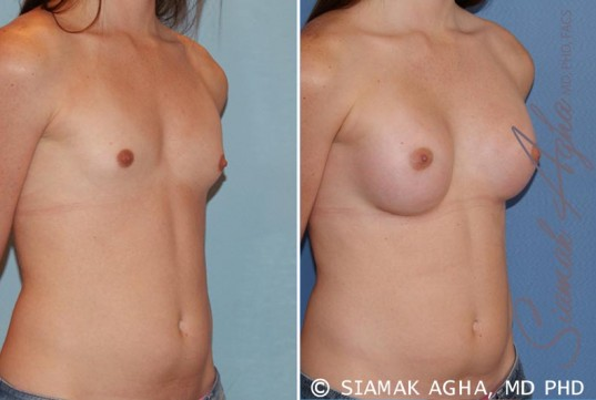 orange-county-breast-augmentation-patient-35-front-right