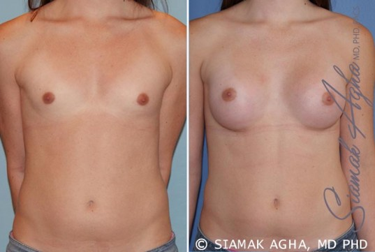 orange-county-breast-augmentation-patient-35-front