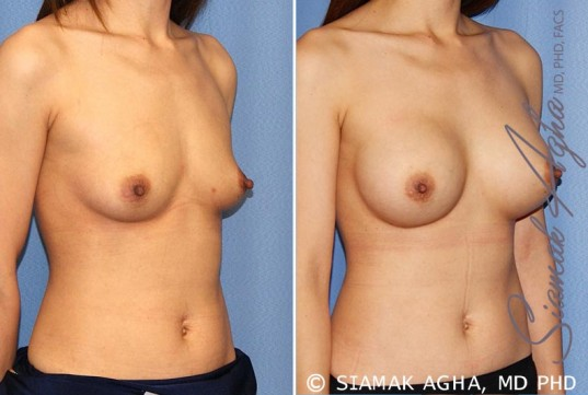 orange-county-breast-augmentation-patient-36-front-right