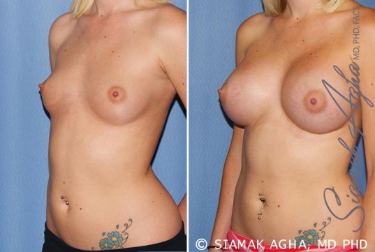 orange-county-breast-augmentation-patient-37-front-left