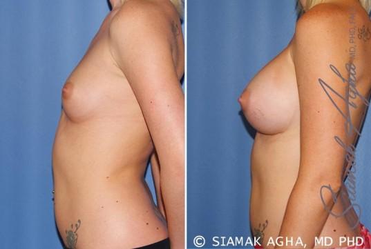 orange-county-breast-augmentation-patient-37-left