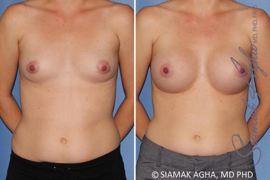 orange-county-breast-augmentation-patient-38-front