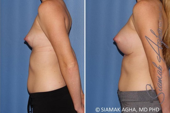 orange-county-breast-augmentation-patient-38-left