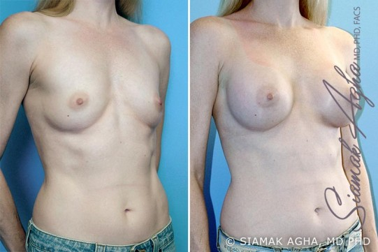 orange-county-breast-augmentation-patient-4-front-right