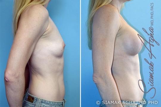 orange-county-breast-augmentation-patient-4-right