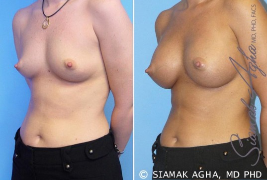 orange-county-breast-augmentation-patient-5-front-left