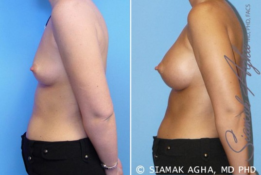 orange-county-breast-augmentation-patient-5-left