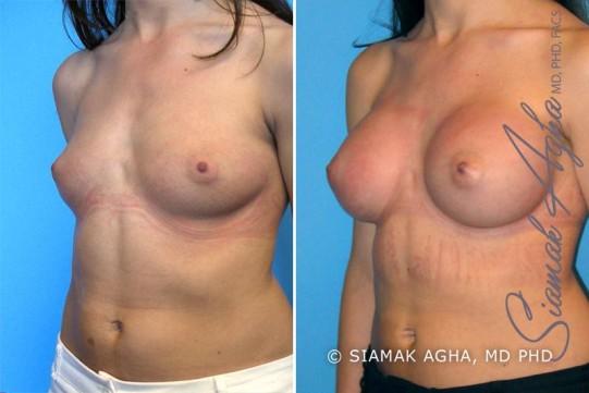 orange-county-breast-augmentation-patient-9-front-left