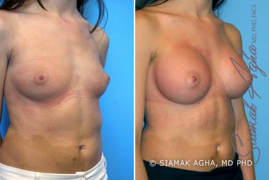 orange-county-breast-augmentation-patient-9-front-right