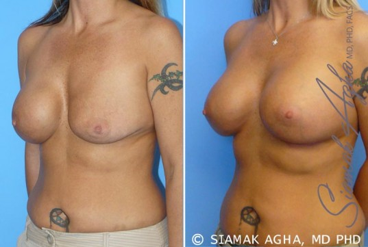 orange-county-breast-augmentation-revision-patient-1-front-left