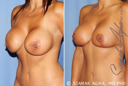 orange-county-breast-augmentation-revision-patient-10-front-left