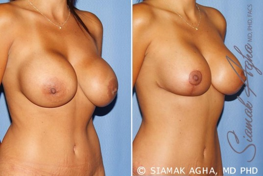 orange-county-breast-augmentation-revision-patient-10-front-right
