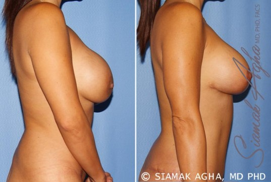 orange-county-breast-augmentation-revision-patient-10-right