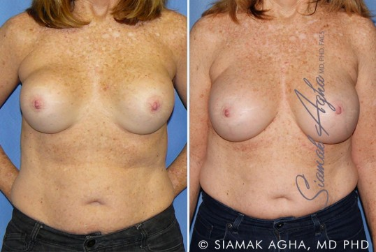 orange-county-breast-augmentation-revision-patient-11-front (1)