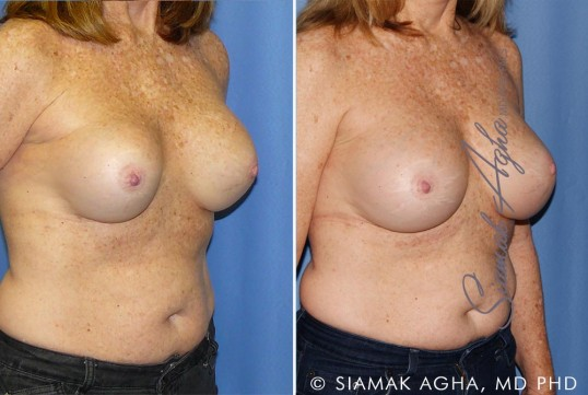 orange-county-breast-augmentation-revision-patient-11-front-right (1)