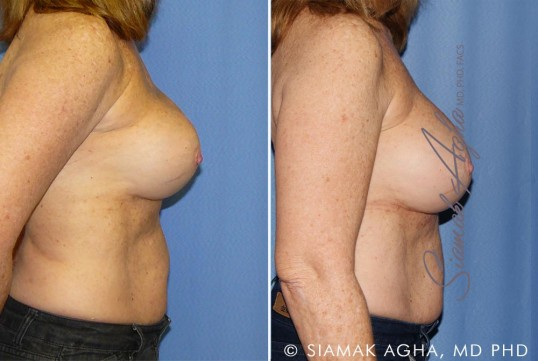 orange-county-breast-augmentation-revision-patient-11-right (1)
